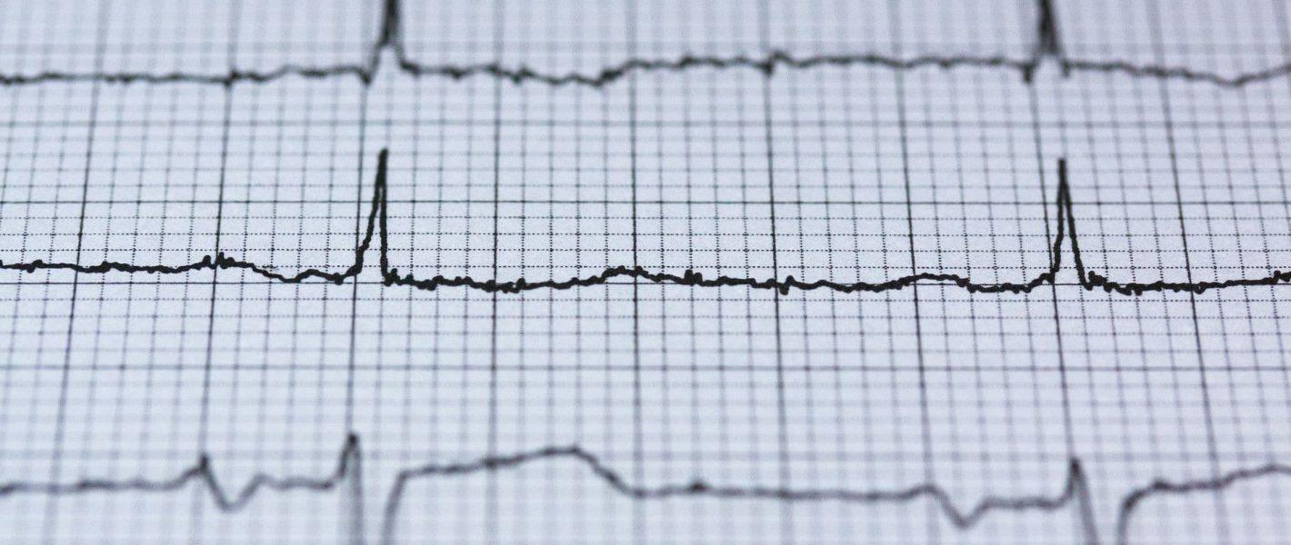 Hartritmepatronen emoties
