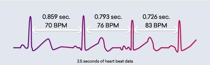wat is hartritmevariabiliteit HRV